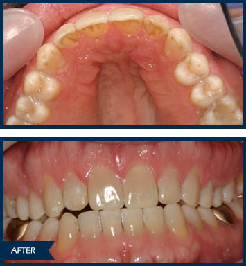 randyh invisalign after