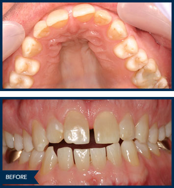 randyh invisalign before