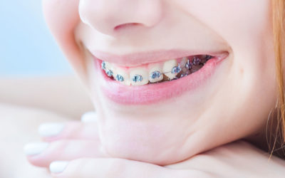 ACCELERATED ORTHODONTICS – DALLAS COSMETIC DENTISTRY
