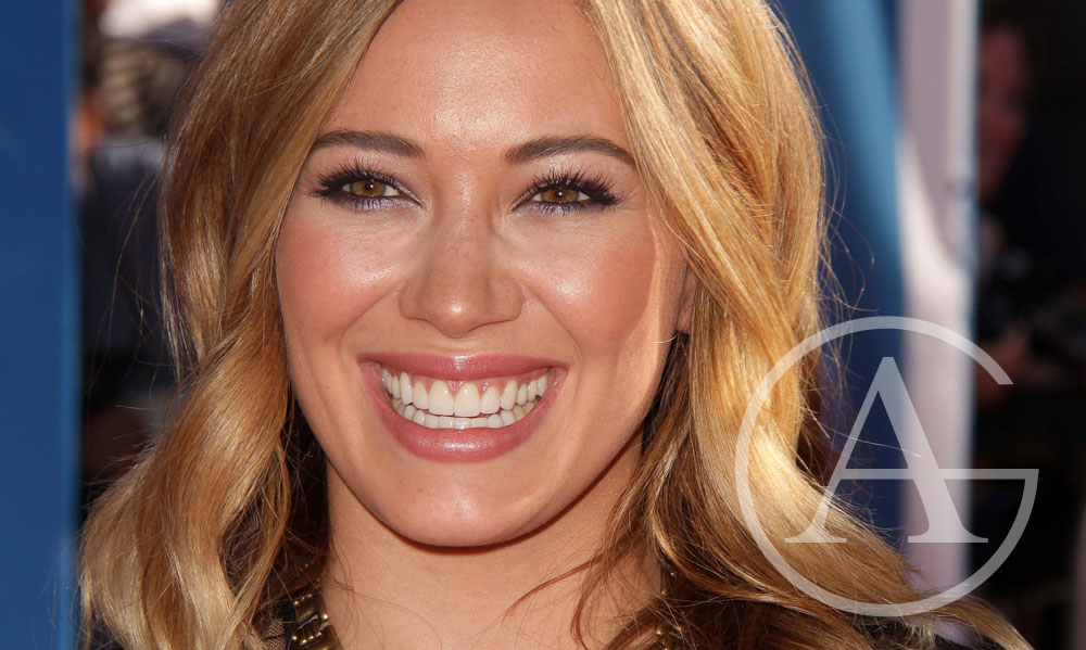 5 Celebrities Who Have Had Veneers